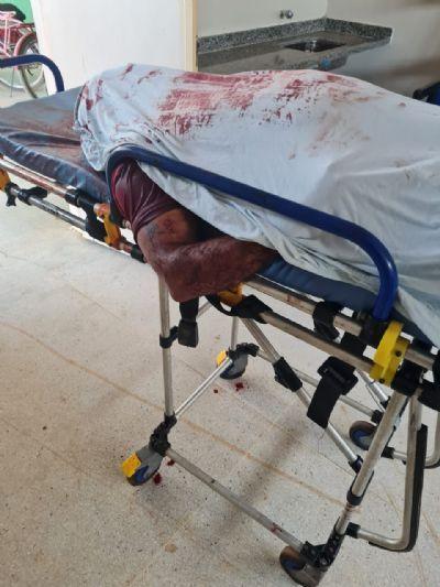 Homem chegou sem vida ao Hospital (Crédito: Agência da Notícia com Reprodução)