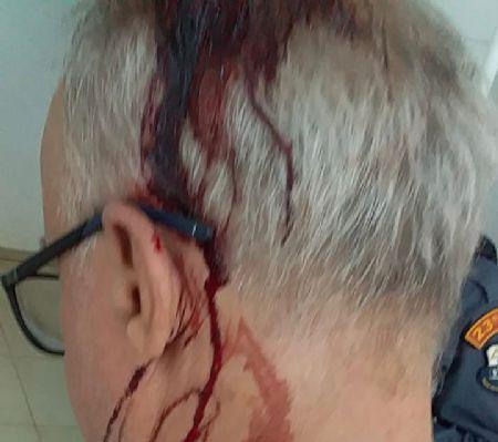 Comerciante foi agredido na cabeça e levou 6 pontos (Crédito: Agência da Notícia)